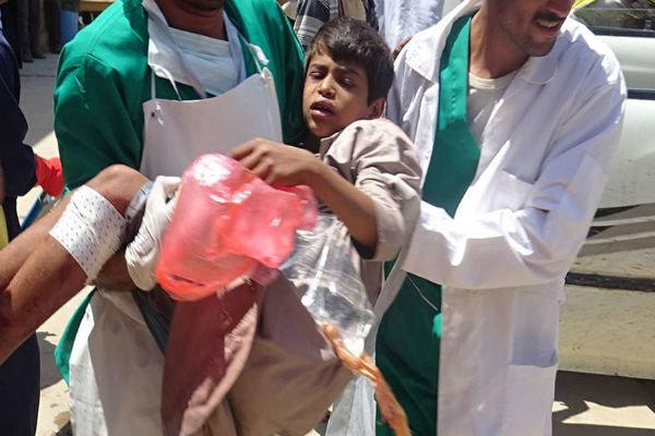 سکوت جامعه جهانی در مقابل جنایتهای سعودی در یمن محکوم است